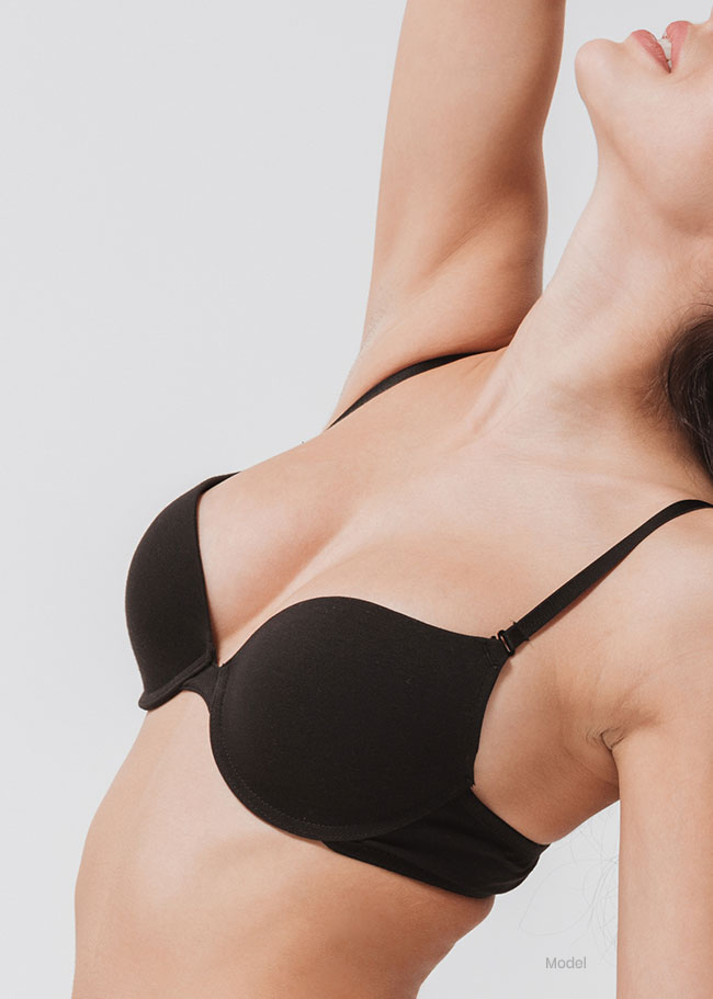 Model: Breast Reduction 2