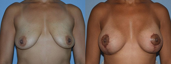 Breast Lift Patient 02 before and after
