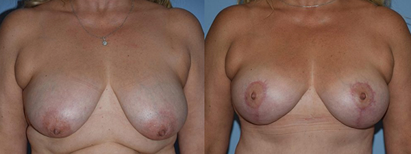 Breast Lift Patient 03 before and after