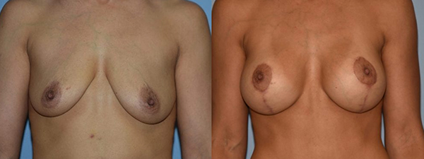 Breast Lift Patient 01 before and after