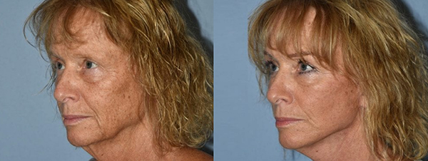 Facelift patient facing the left