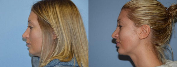 Rhinoplasty patient before and after