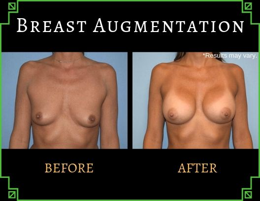 Woman in her late 40's before and after breast augmentation