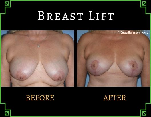 Woman in her 50's, mother of 2 after a mommy makeover which included a breast lift
