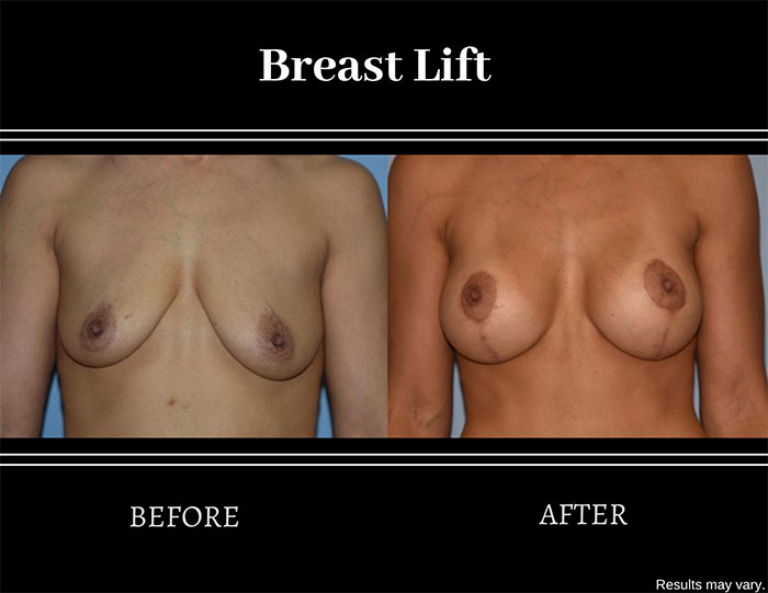Before and after image of a woman after a breast lift procedure. Sagging and drooping were corrected.