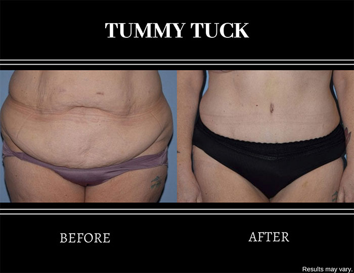 Before and after image of a woman after undergoing a tummy tuck procedure. Excess skin, tissue, and fat were all removed.