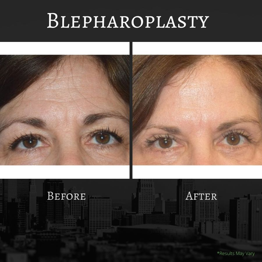 Before and after images of an eyelid lift, or blepharoplasty.