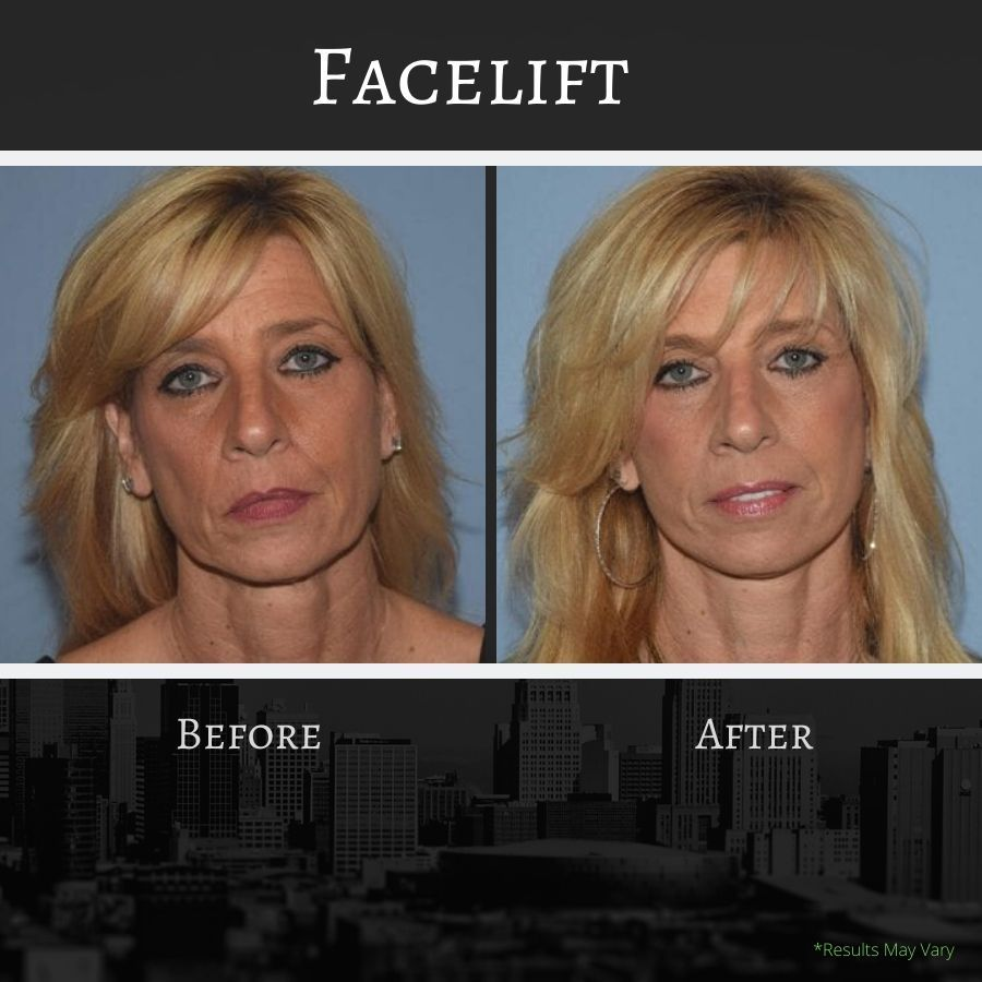 Before -and-after images of a facelift.