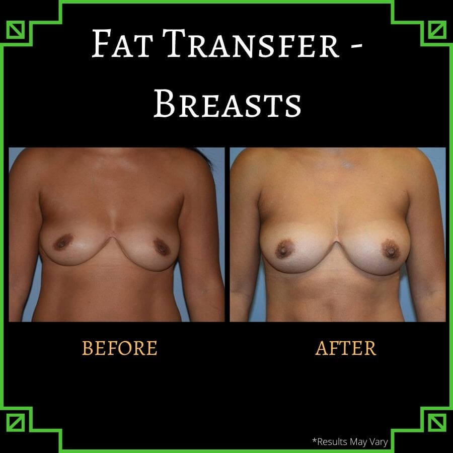 Fat transfer provides results that fit in beautifully with the rest of your body—all without the use of foreign substances or implants, as shown in this before-and-after shot of a young woman who received fat transfer for breast augmentation.