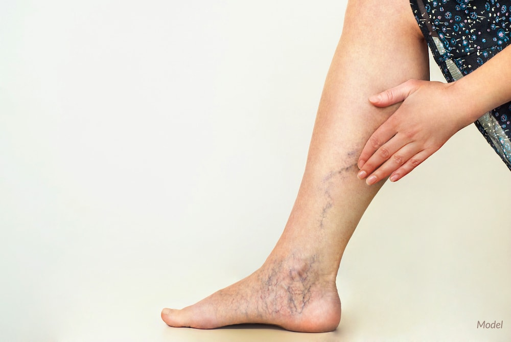 Women with varicose and spider veins before a laser treatment.