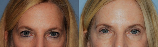Patient Before & After Photo