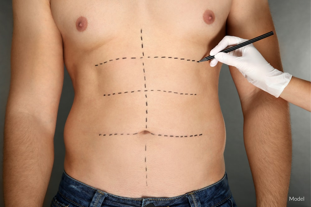 Man with plastic surgery treatment lines drawn on his abdomen.