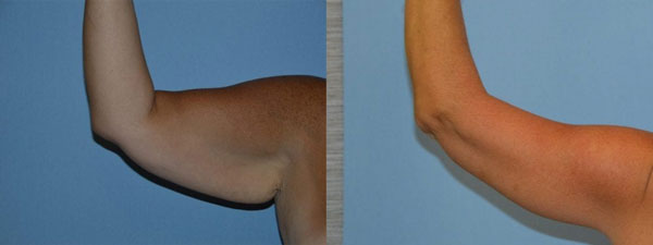 Before and after arm lift patient